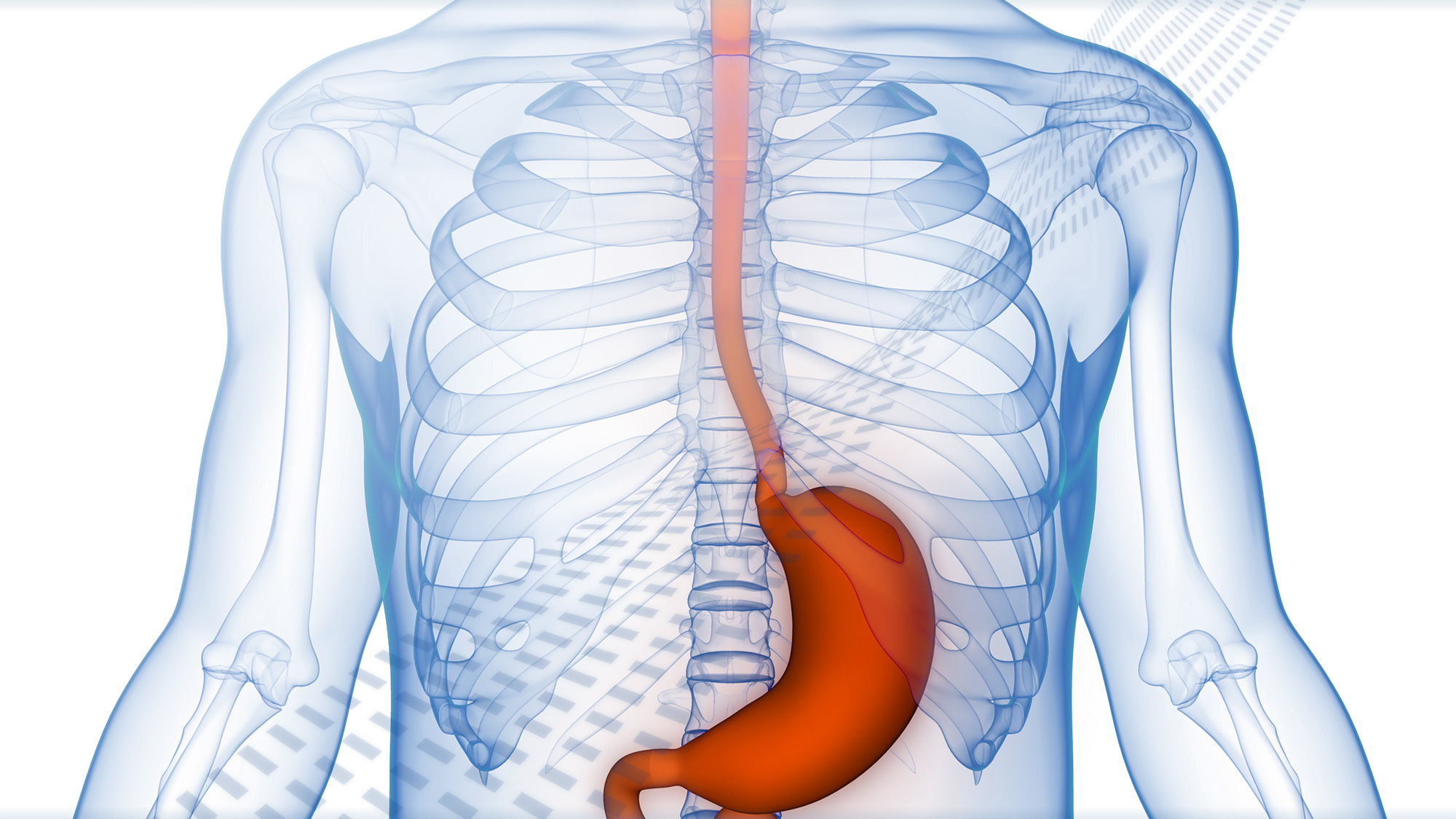 Developing Transformative Therapies to Advance the Treatment of Gastrointestinal (GI) Disorders